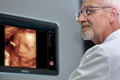 УЗИ аппараты Mindray: интеллектуальные опции сканирования